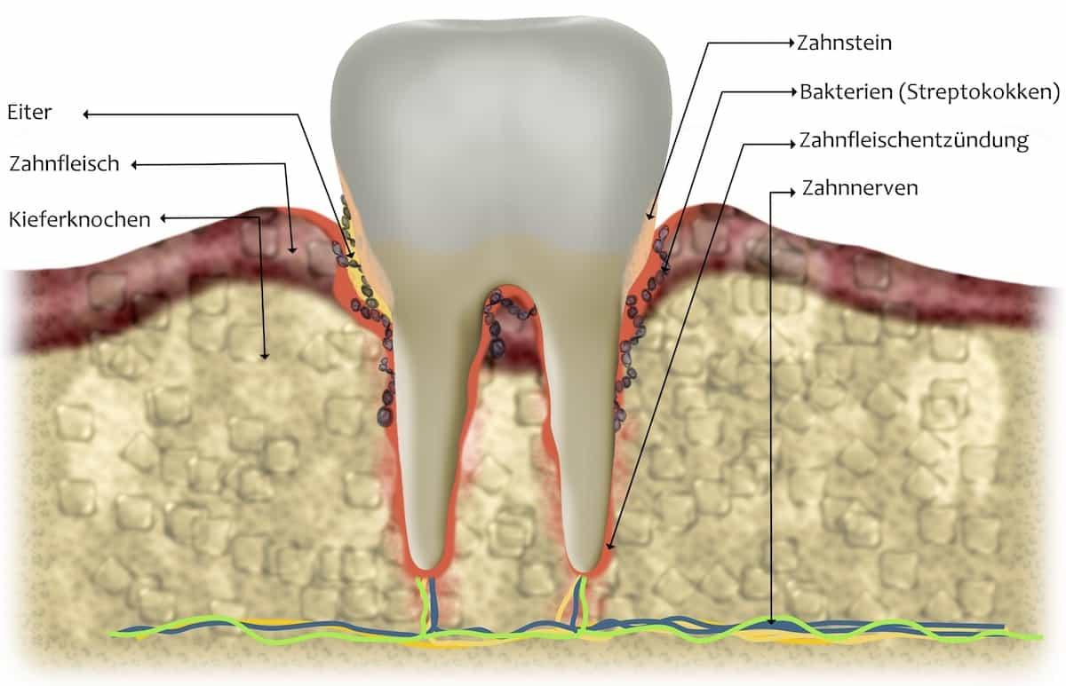 Covid-Prävention Parodontitis und Mundhygiene als Risikofaktoren