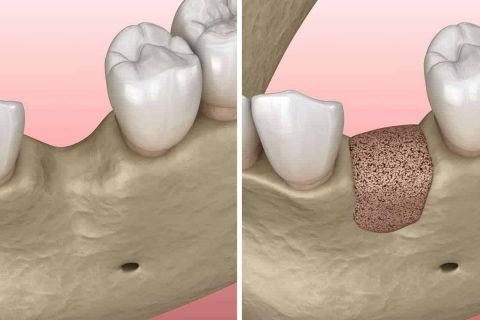 Knochenaufbau für Zahnimplantate in Düsseldorf