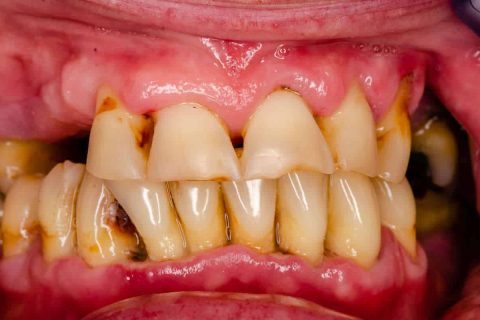 Parodontitis (= Parodontose): Symptome, Prophylaxe und Behandlung in Düsseldorf