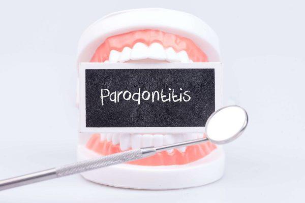 Parodontologietag: Parodontitis und ihre Wechselwirkungen