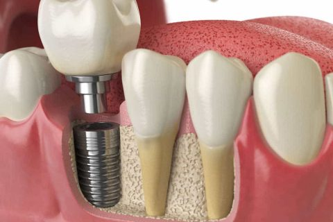 zu alt für Zahnimplantate?