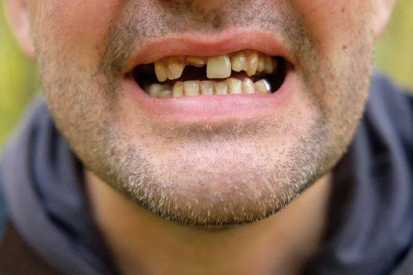 Ist Zahnverlust vererbbar? Neueste Erkenntnisse geben Aufschluss