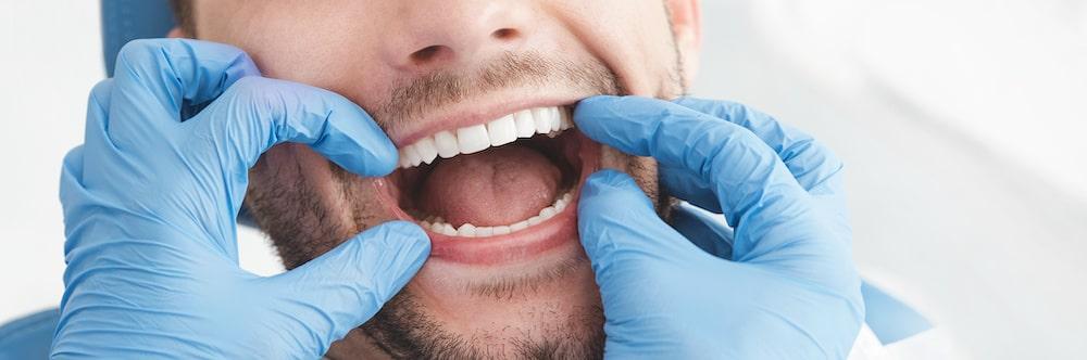 Die einzelnen Zähne werden mit Nummern benannt, um sie eindeutig Vororten zu können.