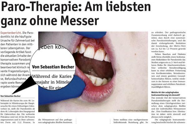 Parodontitis-Therapie: Expertenbericht von Dr. Sebastian Becher
