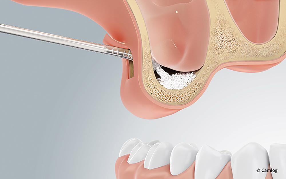 Zahnimplantat trotz Knochenschwund: Zunächst bringen wir in die Kieferhöhle das Knochenersatzmaterial ein.