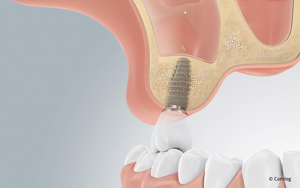 Zahnimplantat trotz Knochenschwund: Nachdem das Knochenersatzmaterial durch neue Knochenzellen ersetzt wurde, können die Implantate eingesetzt werden.